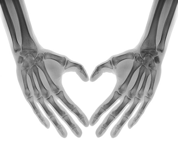 Negative X-ray - Human palms folded in a heart shape stock photo