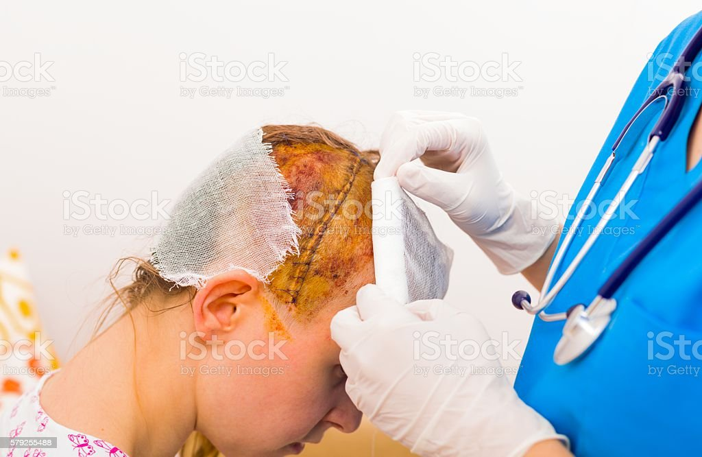 Neoplasm is important after misadventure stock photo