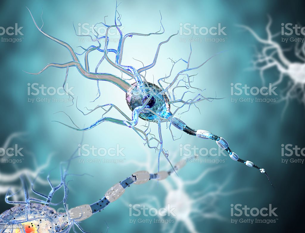nerve cells, concept for Neurologic Diseases, tumors and brain surgery. stock photo