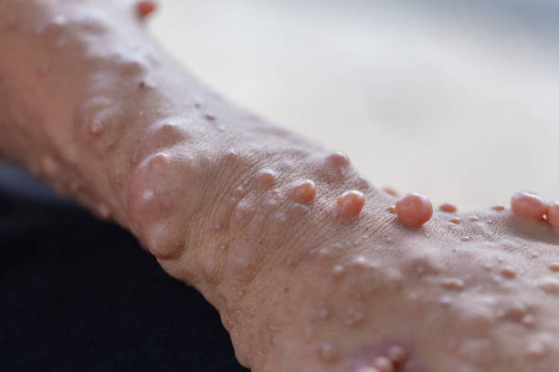 Neurofibromatosis (NF) is conditions in which tumors grow, symptoms include light brown spots on the skin. stock photo