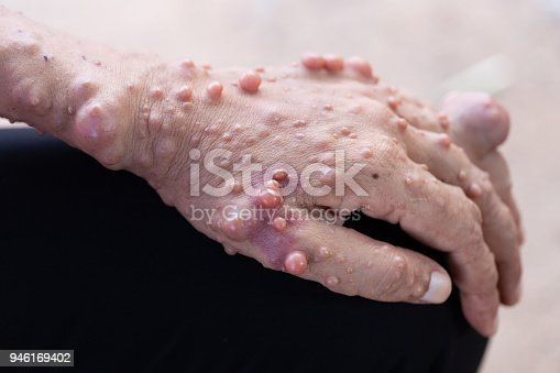 istock Neurofibromatosis (NF) is conditions in which tumors grow, symptoms include light brown spots on the skin. 946169402