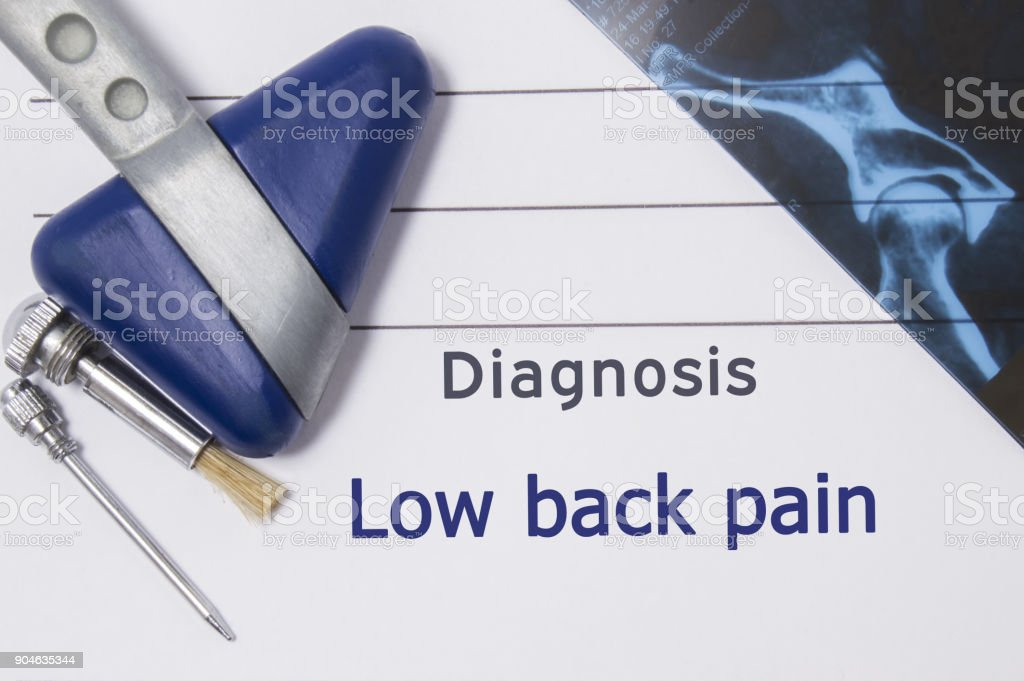 Neurological diagnosis of Low Back Pain. Neurologist directory, where is printed diagnosis Low Back Pain, lies on workplace with MRI image and neurological diagnostic tools close-up stock photo
