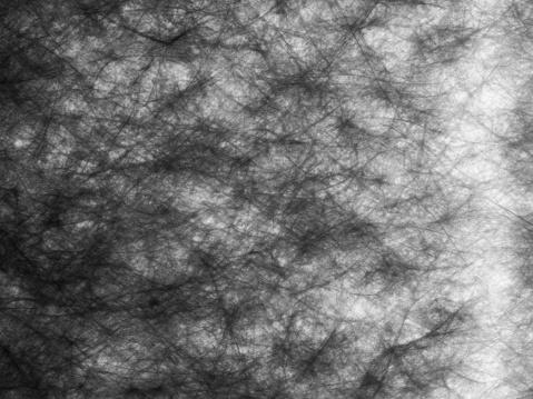 istock Neuron Pattern 1138223532