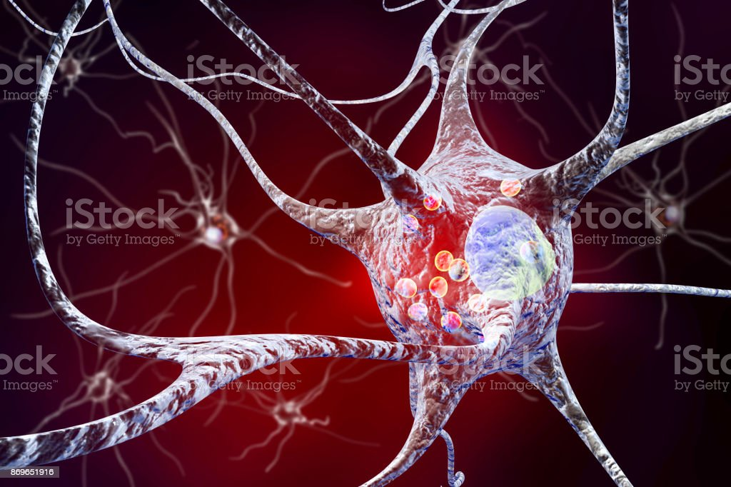 Neurons in Parkinson's disease stock photo