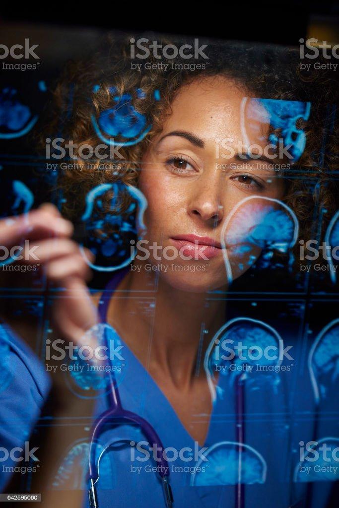 neurosurgeon checking mri scans stock photo