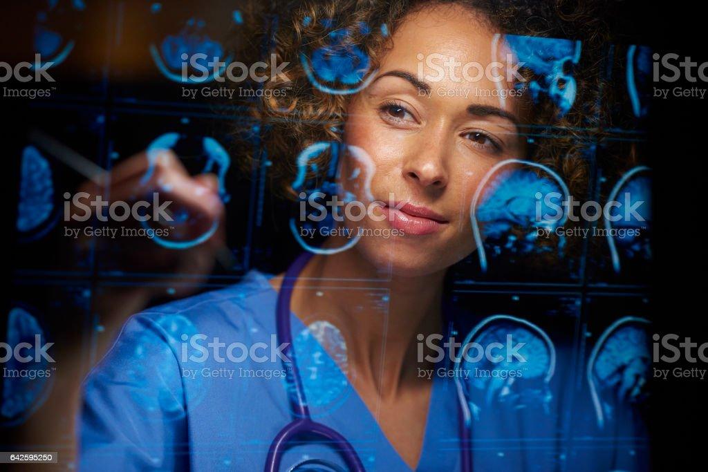 neurocirujano comprobación exploraciones de mri - foto de stock