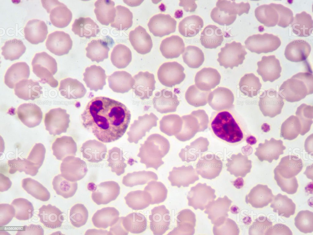 Neutrophil and lymphocyte cell stock photo