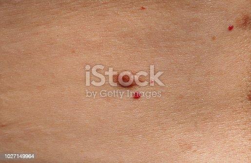 Nevus and cherry angioma on human skin