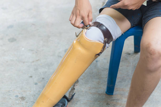 New aluminium prostheses legs for amputee patient stock photo