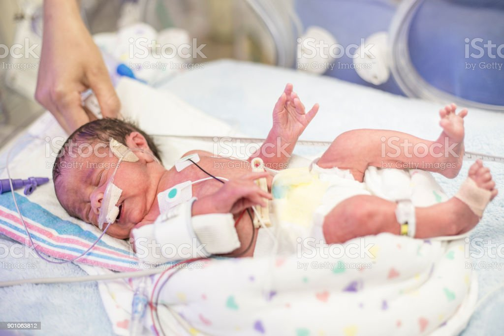 Newborn premature baby in the NICU intensive care stock photo