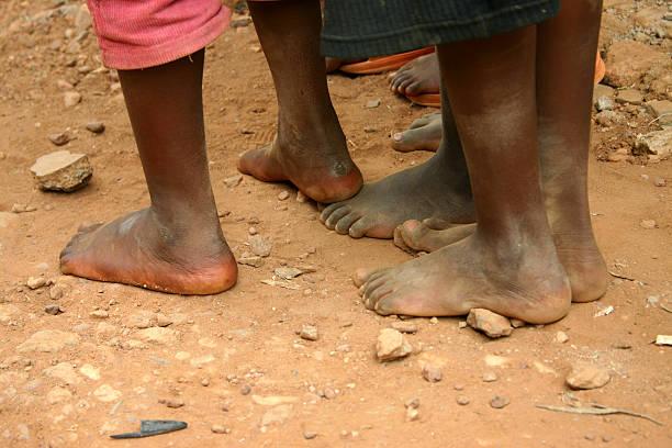 No shoes... stock photo