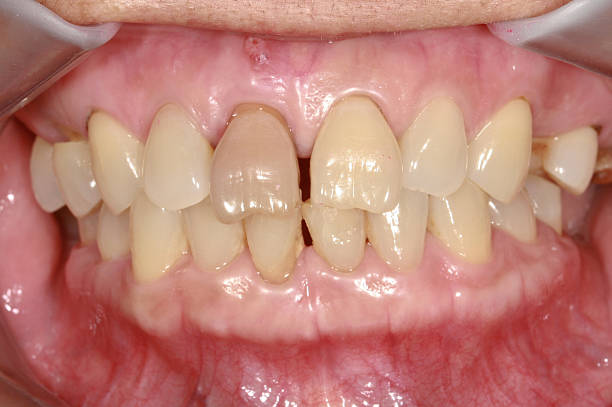 Non-vital tooth stock photo