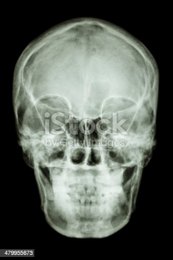 istock normal asian human's skull (Thai people) 479955673