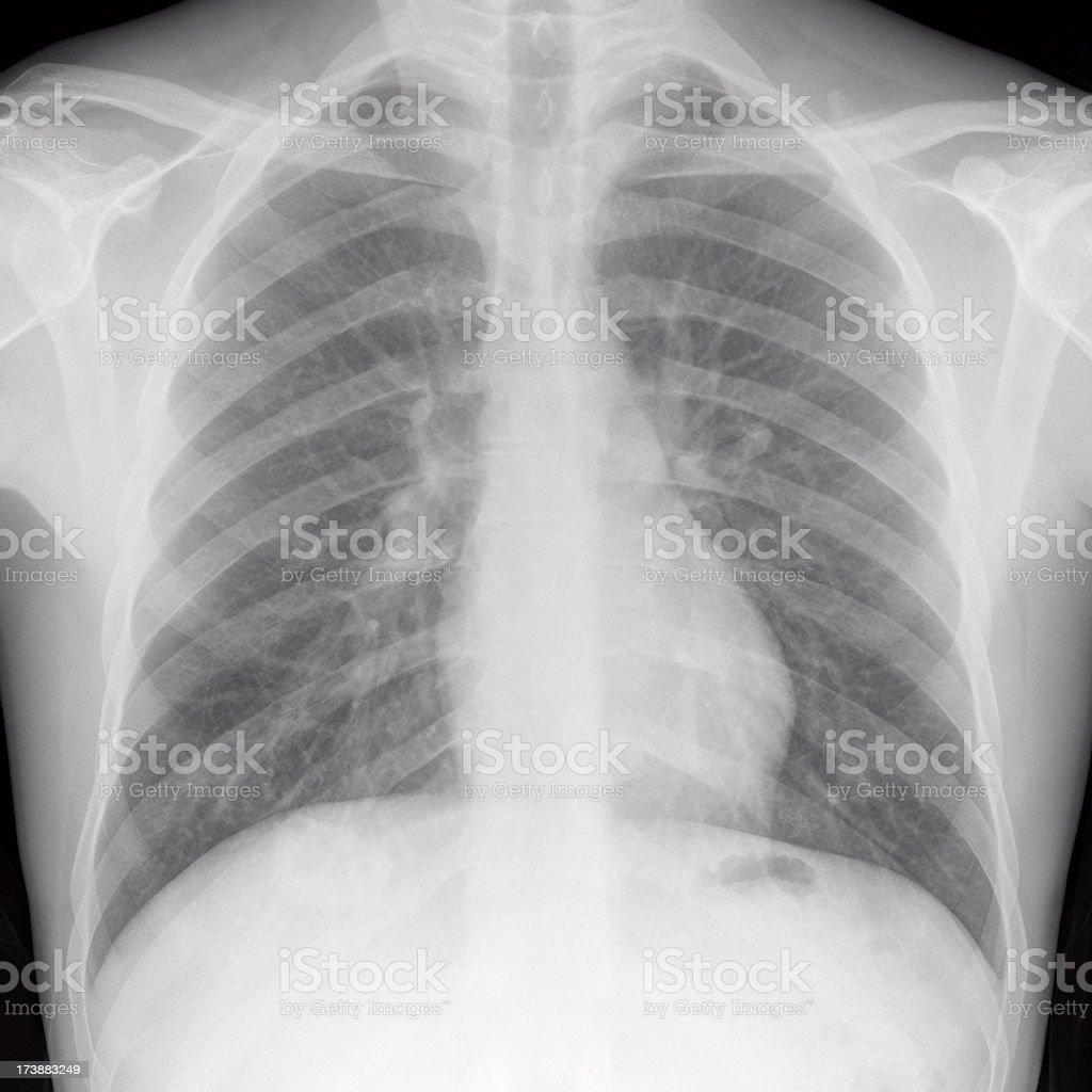 Nett X Ray Fußanatomie Fotos - Anatomie Von Menschlichen ...