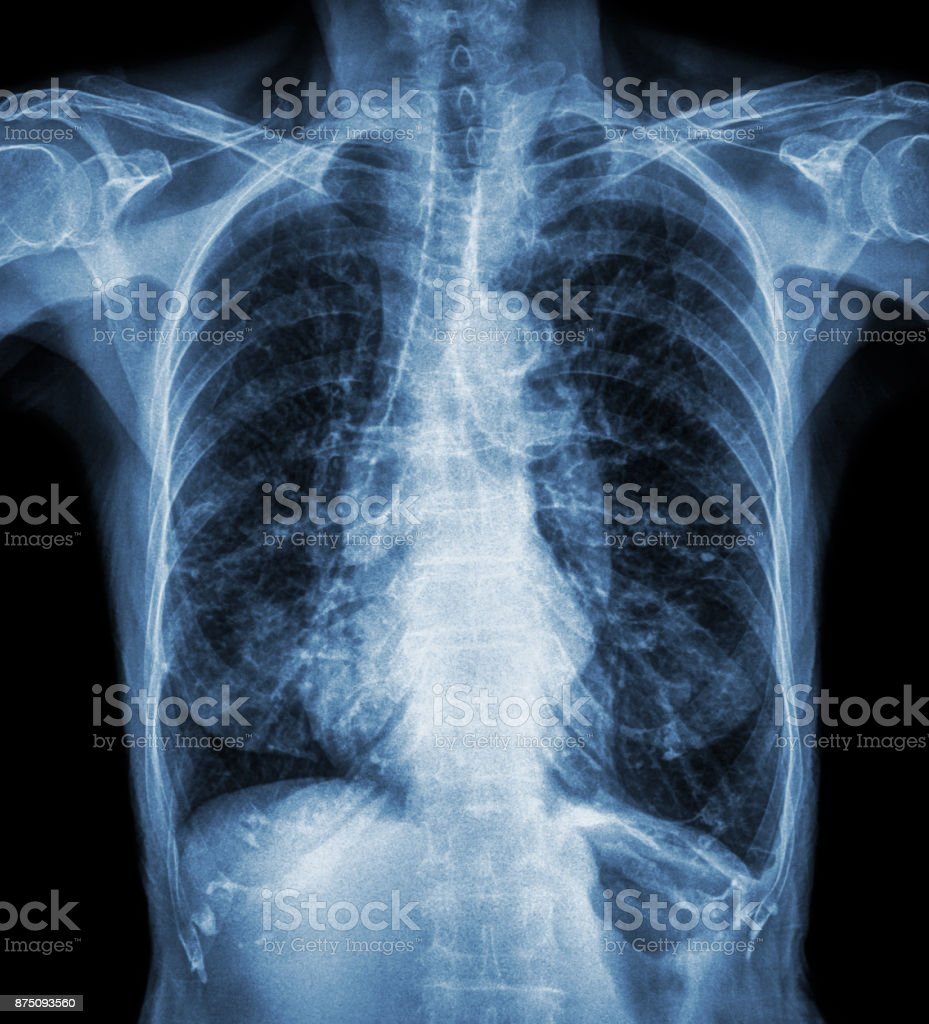 Normal chest X-ray of old patient . You can seen calcification at rib , trachea , bronchus . Front view stock photo