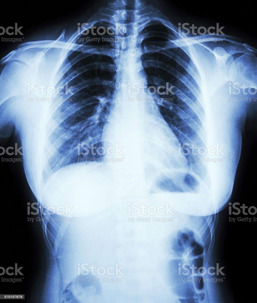 Normal Brust Xray Von Frau Stock-Fotografie und mehr Bilder von ...