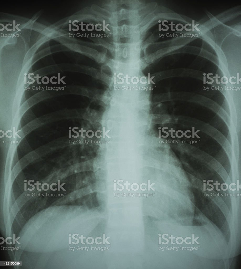 Normal Chest Xray Stock Photo More Pictures Of Anatomy Istock