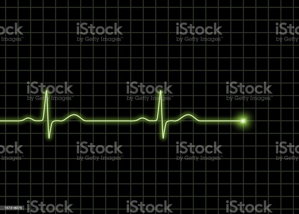 Normal ECG waves royalty-free stock photo