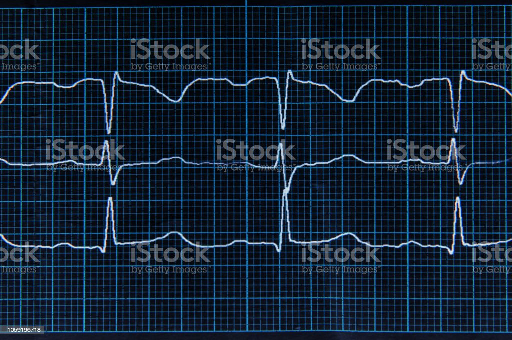 Normal ECG with arrhythmia elements. The heartbeat lines on the monitor screen are blue. stock photo