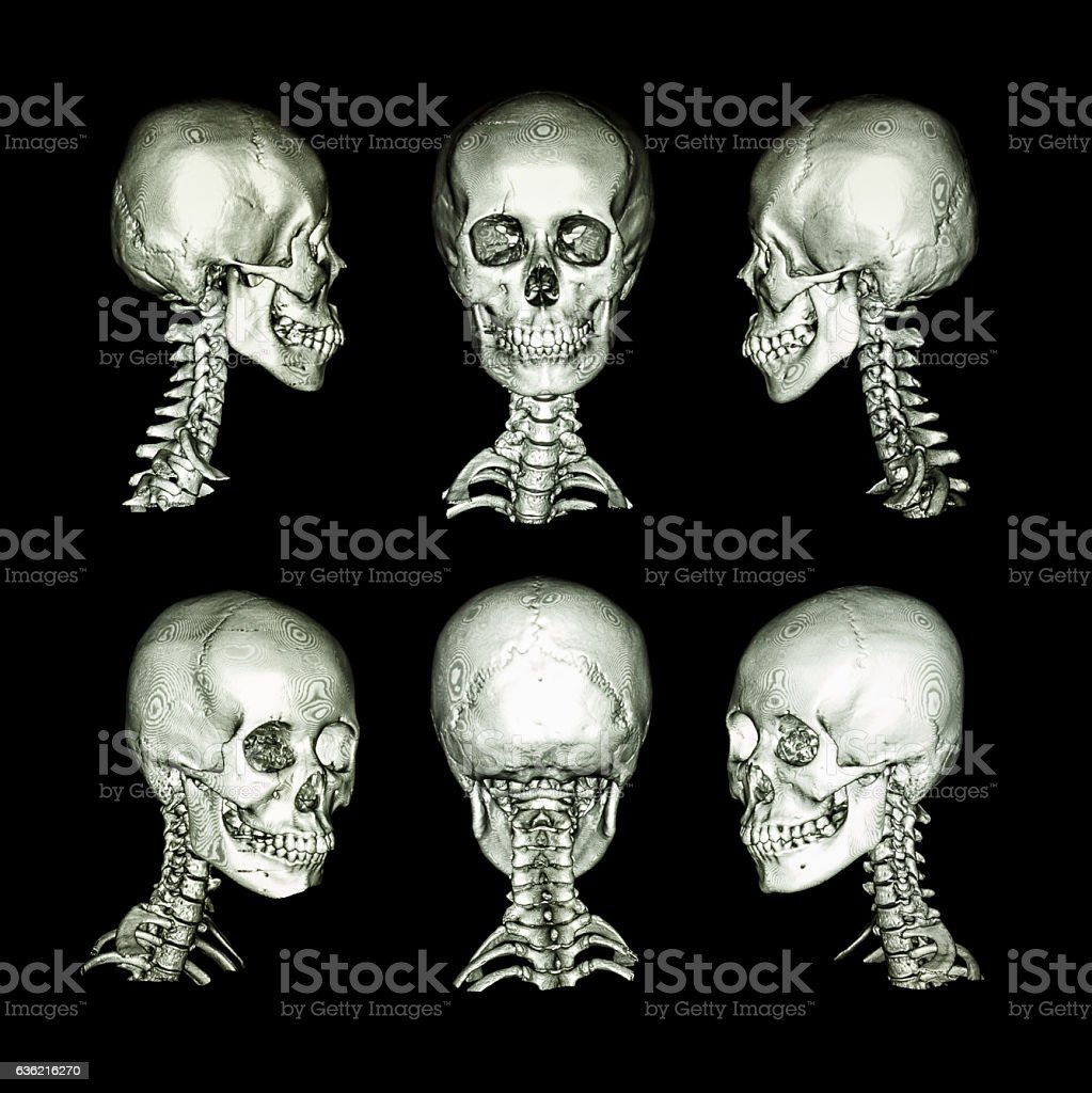 Normal Human Skull And Cervical Spine All Direction Stock Photo