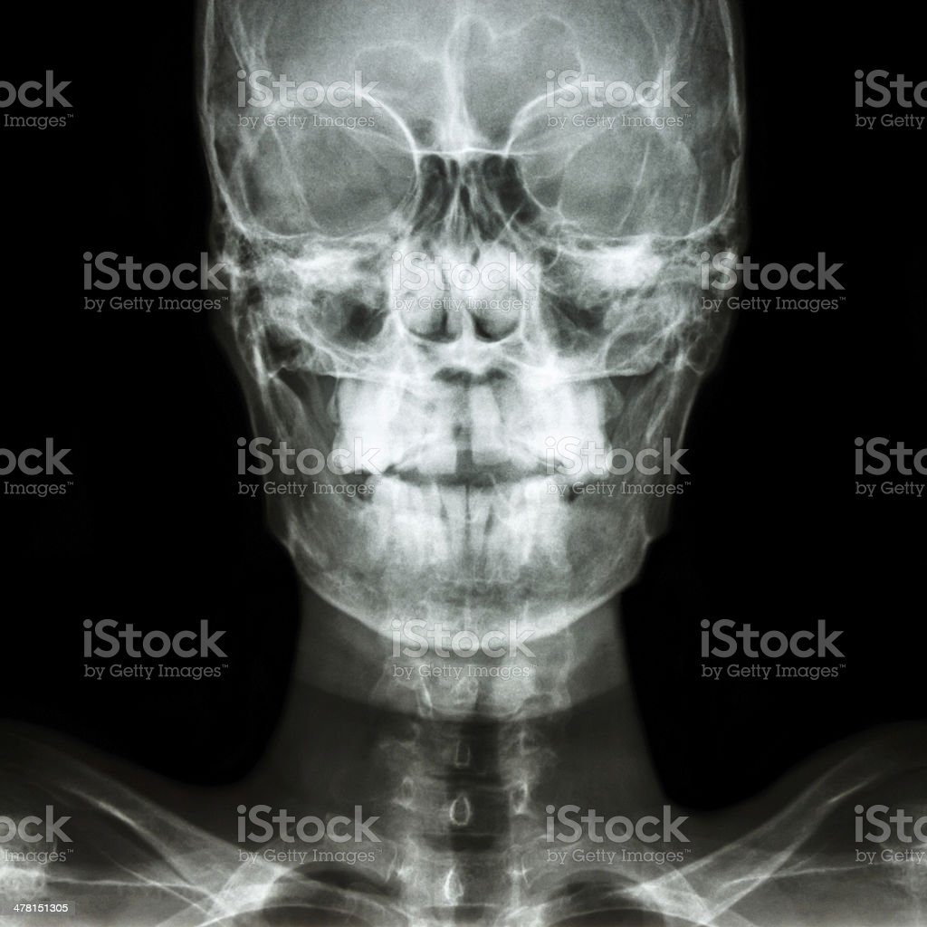 Humanos Normales De Cráneo Y Zona En Blanco En La Mano Derecha Foto