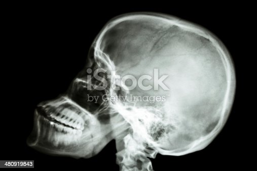 1159627147 istock photo normal human's skull and cervical spine 480919843
