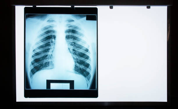 normaler lungen-röntgengraph auf negatoskop - herz lungen training stock-fotos und bilder