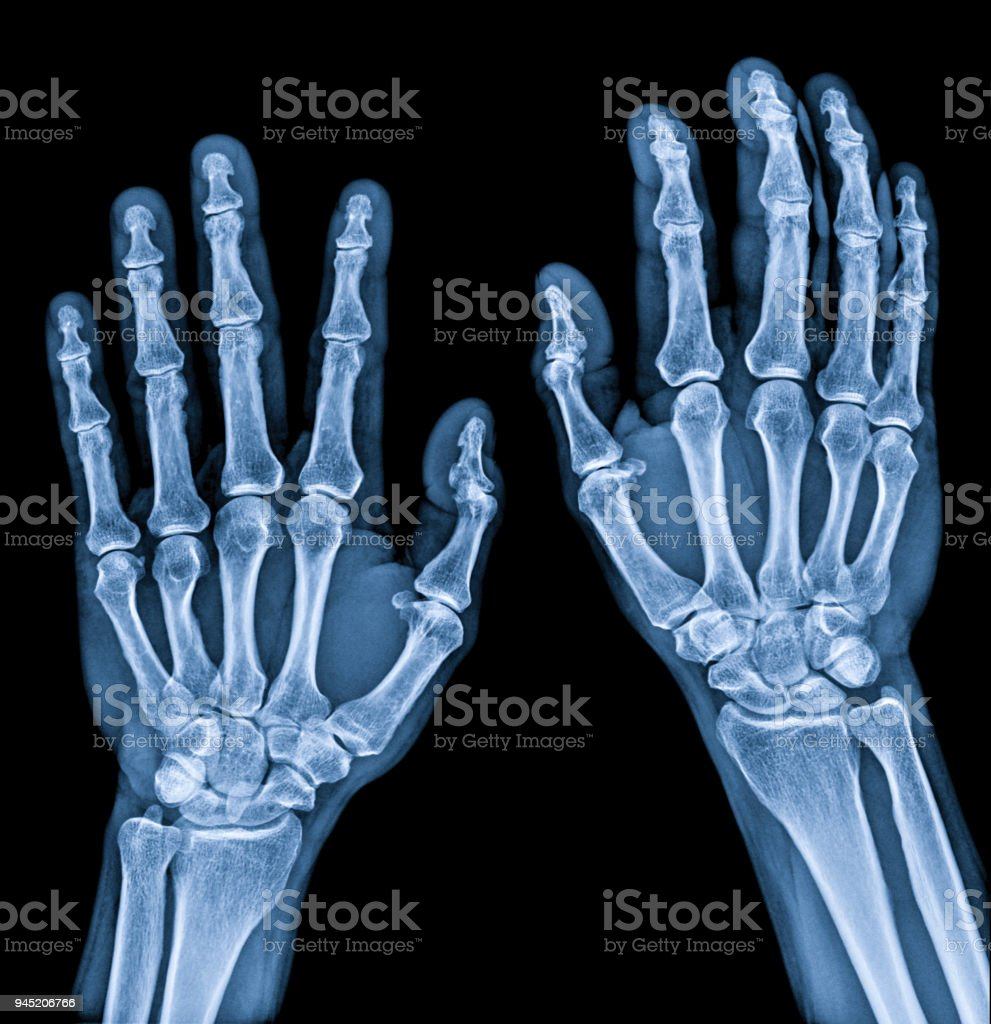 Normal male Hand x-ray both side process in blue tone stock photo