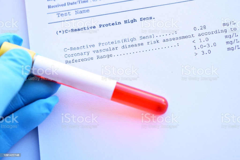 Normal result of C-reactive protein test stock photo