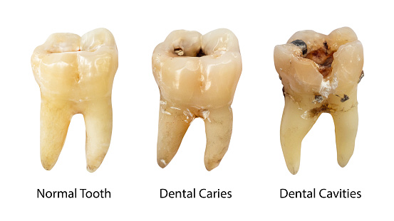 istock Normal tooth , Dental caries and Dental cavity with calculus . Comparison between difference of teeth decay stages . White isolated background . Front side view 1091688578