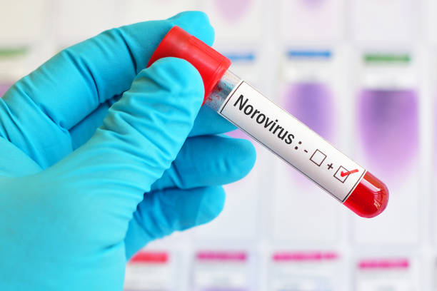 Norovirus positive blood tube stock photo