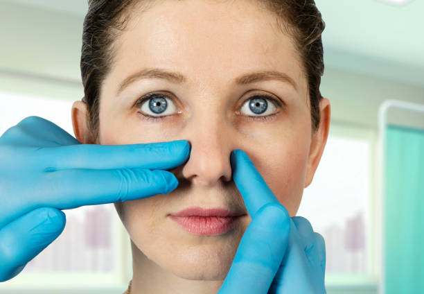 Nose Beauty Surgery in Hospital Nose Job, Nose, Beauty, Surgery, Women human nose stock pictures, royalty-free photos & images