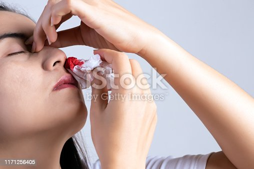 istock Nosebleed , a young woman with a bloody nose. Healthcare and medical concept. 1171256405