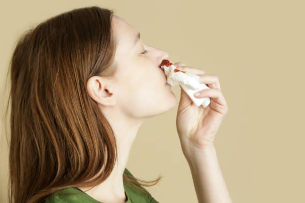 Nasenbluten, eine junge Frau mit einer blutigen Nase. Gesundheits- und medizinisches Konzept. Schließen Sie Studiobild aus. – Foto
