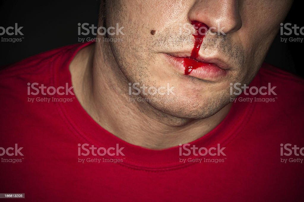 Nosebleed stock photo