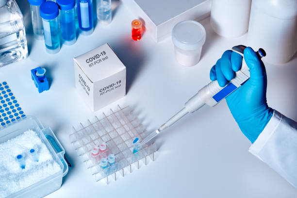 novel coronavirus 2019 ncov pcr diagnostics kit. this is rt-pcr kit to detect presence of 2019-ncov or covid19 virus in clinical specimens. in vitro diagnostic test based on real-time pcr technology - covid 19 stock pictures, royalty-free photos & images