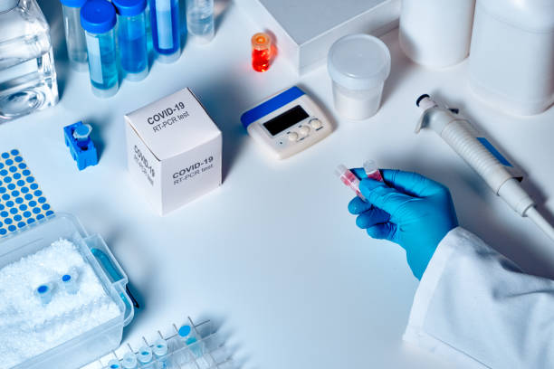 Novel coronavirus 2019 nCoV pcr diagnostics kit. This is RT-PCR kit to detect presence of 2019-nCoV or covid19 virus in clinical specimens. In vitro diagnostic test based on real-time PCR technology stock photo