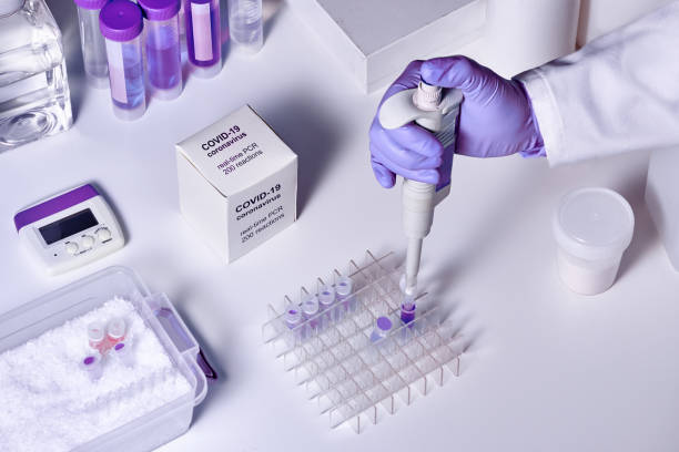 novel coronavirus 2019 ncov rt-pcr diagnostics kit. reagents, primers and control samples to detect presence of 2019-ncov or covid19 virus. in vitro diagnostic test based on real-time pcr method. - eksperyment naukowy zdjęcia i obrazy z banku zdjęć