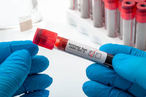 Nuevas pruebas de anticuerpos clínicos coronavirus y concepto de diagnóstico Covid-19 con el médico sosteniendo la muestra de plasma sanguíneo utilizada para la prueba de antígeno SARS-CoV-2 con un control rojo en la caja positiva - foto de stock
