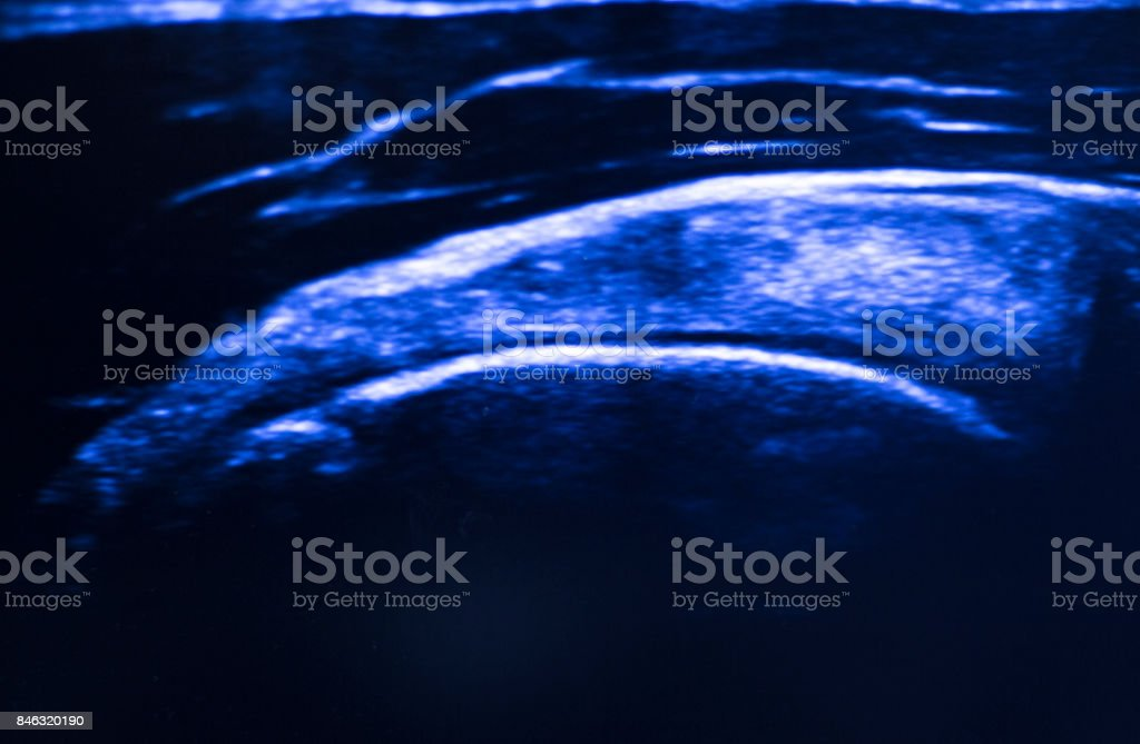 Nurse bandaging after knee surgery hospital operation medical procedure in emergency room operating theater. stock photo