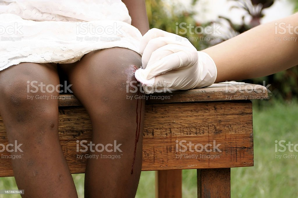 Nurse Cleaning Wound stock photo