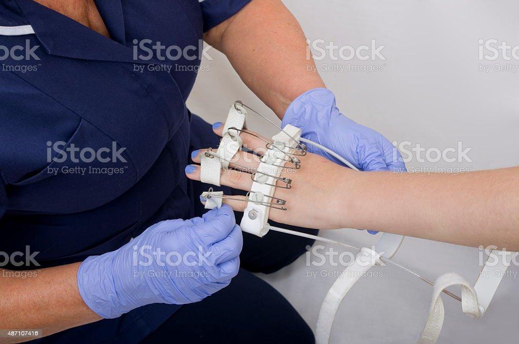 Nurse Fitting Girls Flexing Splint stock photo