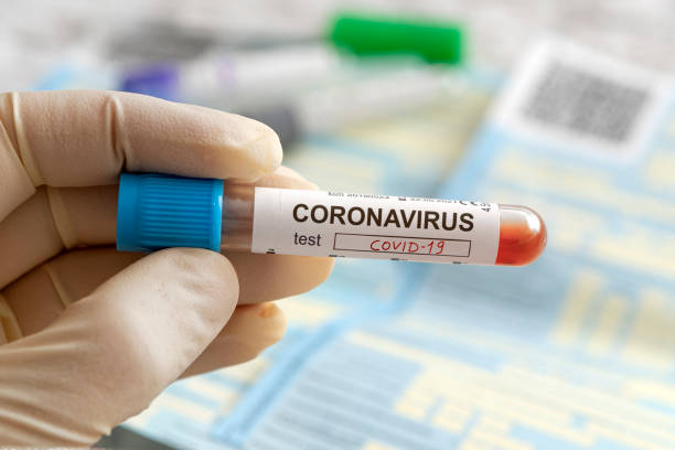 Nurse holding a positive blood test result for the new rapidly spreading Coronavirus, originating in China. lettering on the label coronavirus test covid-19, stock photo