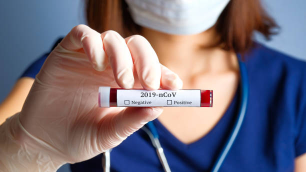 nurse holding test tube with blood for 2019-ncov analyzing. novel chinese coronavirus blood test concept - polmonite virus foto e immagini stock