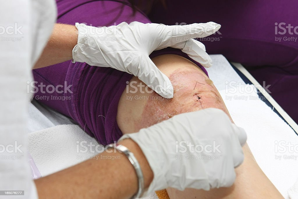 Nurse is changing bandage to a patient after knee operation royalty-free stock photo