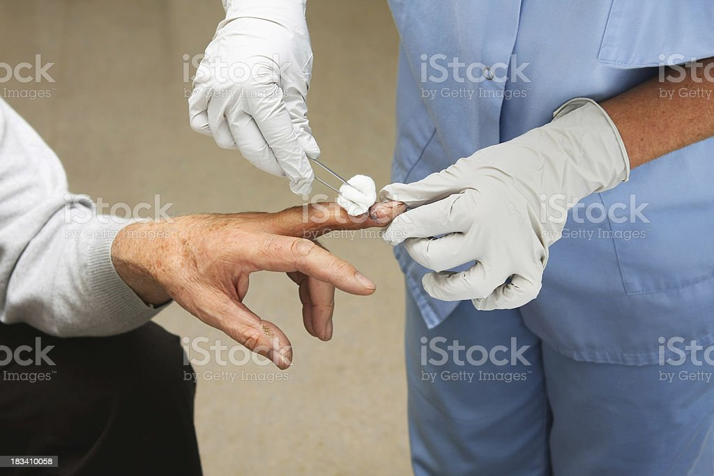 Nurse is removing stitches from a patients finger royalty-free stock photo