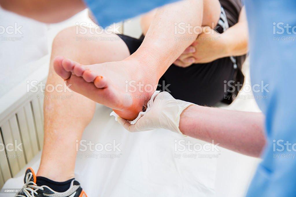 Krankenschwester kümmert sich um Patienten mit der Achillessehne Verletzungen – Foto