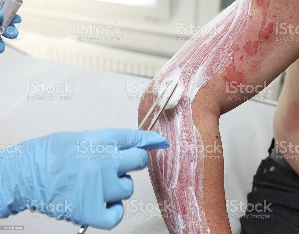 Nurse is taking care of patient with burns,cleaning wound royalty-free stock photo