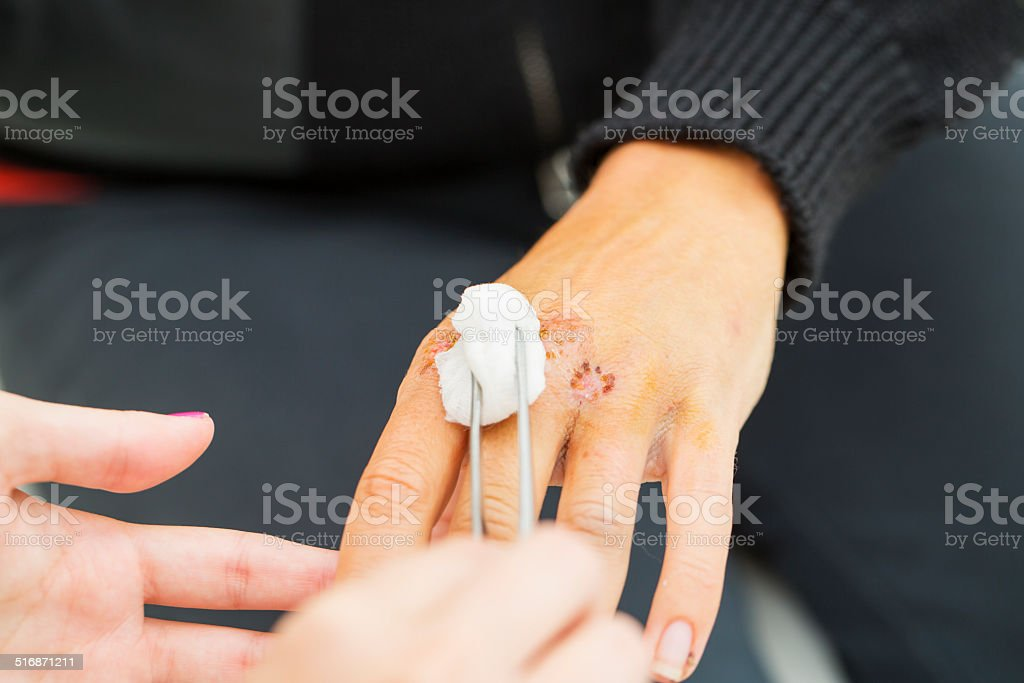 Nurse is taking care of patient with the wounded wrist stock photo