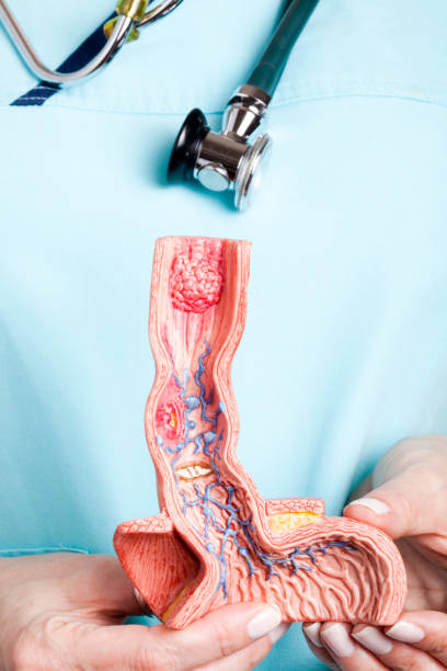 nurse with esophagus model - esophagus stock photos and pictures
